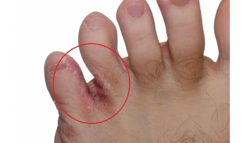 Cómo eliminar la tiña de los pies