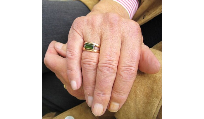 Solución para las manchas en las manos